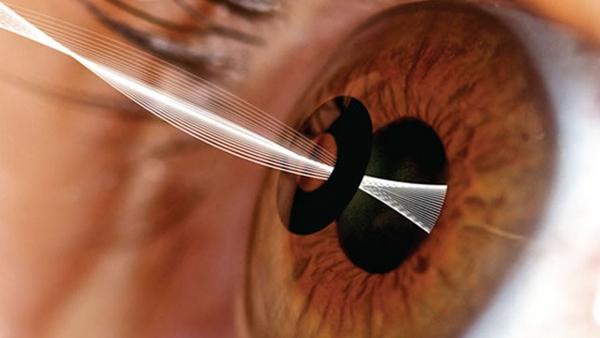 15.Τέλος στα γυαλιά πρεσβυωπίας με εμφύτευση δακτυλίου στα μάτια
