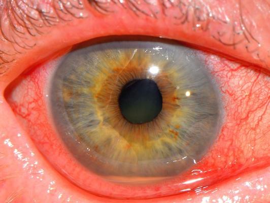 17.Λοιμώδης ενδοφθαλμίτιδα