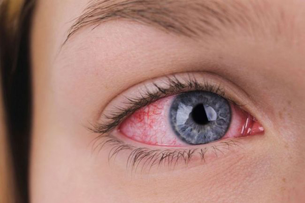 18.Χημικά εγκαύματα στο μάτι_Διάγνωση και αντιμετώπιση