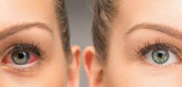 4.Ερυθρότητα οφθαλμού