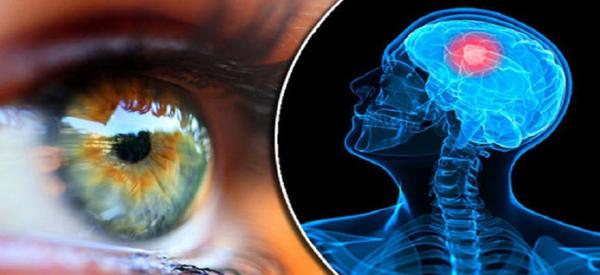 5.Τα συμπτώματα 9 σοβαρών παθήσεων που φαίνονται στα μάτια σας.